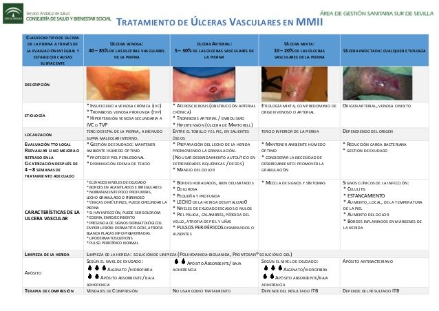 Tratamiento De úlceras Vasculares En Mmii Clasificar Tipo De úlcera De La Pierna A Través De La Evaluación Integral Y Esta