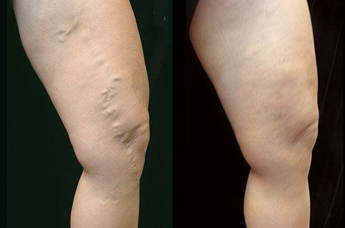 Medicine to treat varicose veins. The first results are visible almost immediately !    Genetic predisposition, hormonal changes, lack of adequate physical activity, age or overworking - all this causes the formation of varicose veins.  Varicose veins is