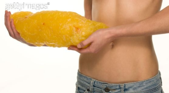 this is what 5 pounds of fat looks like. (I remember our bio lab at MtSac had one of these blobs!)
