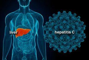 Jelly Gamat Gold G Obat Herbal Hepatitis C yang Mujarab dan Ampuh dalam membunuh virus penyebab hepatitis secara TUNTAS sehingga proses penyembuhan berlansung cepat dan aman. Promo khusus hari ini BARANG LANGSUNG DIKIRIM, BAYAR SETELAH BARANG DI TANGAN ANDA. Jangan Lewatkan, Promo Terbatas !!