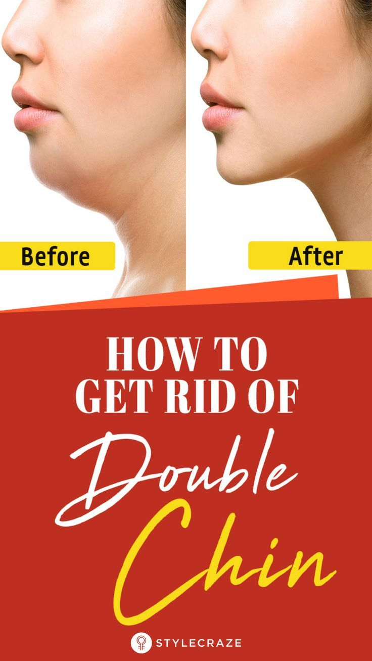 How To Reduce Double Chin With 8 Exercises 9 Remedies And ...