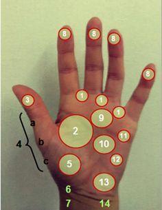 La acupresión es una técnica de la medicina tradicional china que consiste en…