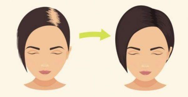 Το Απόλυτο Κόλπο κατά της Τριχόπτωσης: Δείτε το Μυστικό για Τονώσετε τα Μαλλιά σας με ΚΑΤΙ που όλοι έχουμε στο Σπίτι!