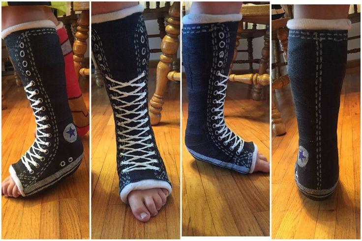 Leg cast design idea. Cast decoration. Making cast more fun. Converse Chuck Taylor cast.