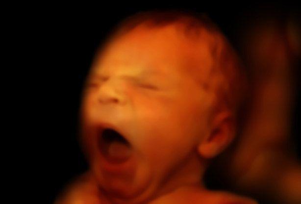 Week 32 van je zwangerschap | 24Baby.nl