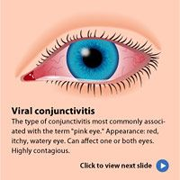 All you need to know about conjunctivitis (pink eye) symptoms, remedies and prevention.