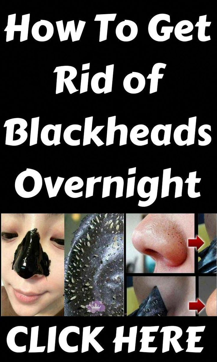 How to get rid of blackheads overnight in 2020 get rid