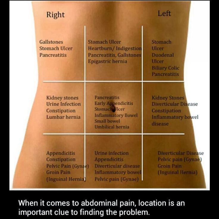 68 best emergencies images on pinterest health survival and abdominal pain location is an important clue to finding the health problem ccuart Choice Image