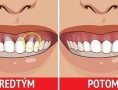 Parodentóza je problém, který je tichým postrachem nás všech, i když si to mnozí neuvědomujeme. Z důvodu, že je tato nemoc nepřenosná a nedoprovází ji ostrá a prudká bolest, necháváme ji z nedbalosti zajít příliš daleko. Namísto prevence pak musíme řešit citlivé dásně, kazy a uvolnění zubů až po jejich úplnou ztrátu. Pokud jste si …