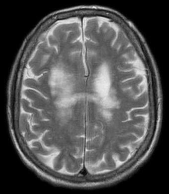 Progressive multifocal leukoencephalopathy - Wikipedia