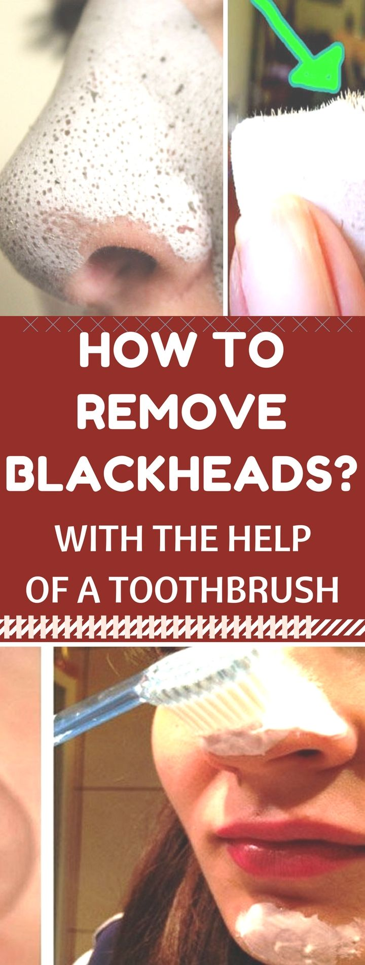 How to Remove Blackheads with the Help of a Toothbrush. Miracle. Reed this