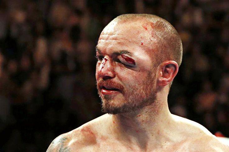 Boxing's 10 worst injuries http://www.boxingnewsonline.net ...