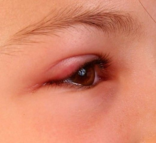 When a person has a swollen eyelid it is usually an indication of some kind of an infection. There are two categories of swollen eyelids: painful and non-painful. When you have a swollen eyelid...
