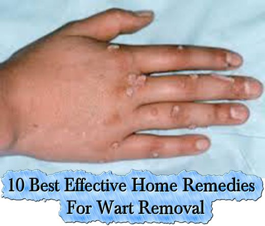 Home Remedy For Infected Finger – A Murti Schofield