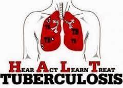 Obat TBC Paru Ace Maxs, Solusi terbaik pengobatan penyakit TBC paru secara menyeluruh, aman, alami, dan tanpa efek samping.
