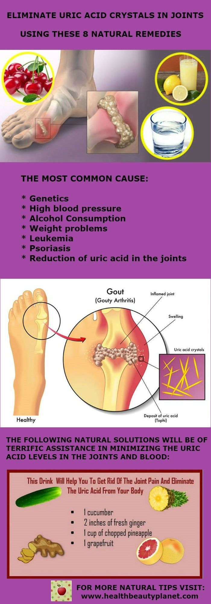 Eliminate Uric Acid Crystals In Joints Using These 8 Natural Remedies