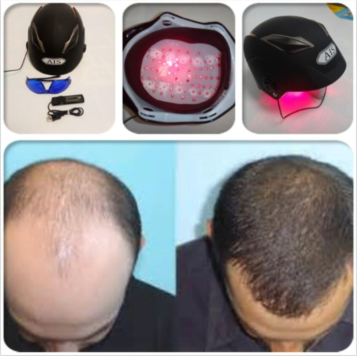 anti hair loss hair loss treatment hat Applications: Hair loss group for hair regrowth treatment Specifications: 5mw 650nm wavelength  Functions: 1, Accelerate the blood flow, improve microcirculation, increase The new supersedes the old. To promote and improve blood circulation. Effect on the...