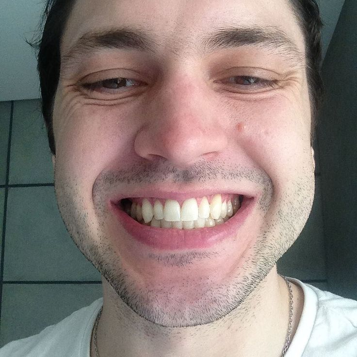 Как отбеливатели для зубов продаются в аптеке