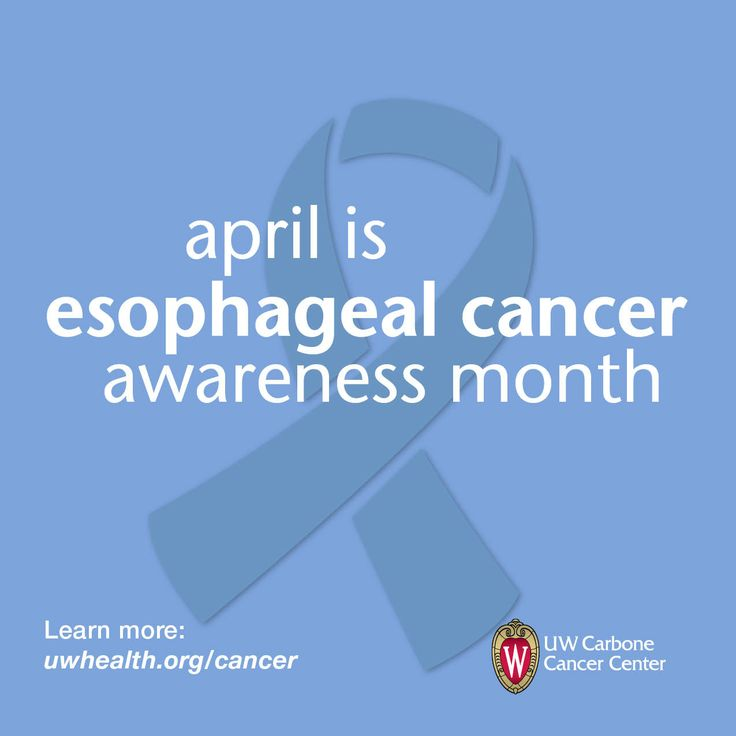 The lifetime risk of esophageal cancer in the United States is about 1 in 125 in men and about 1 in 435 in women.