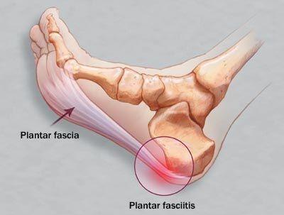 Topuk Dikeni Tedavisi Nedenleri-Topuk Dikeninin Bitkisel Tedavi Yolları | Tedavisi ve Yöntemleri