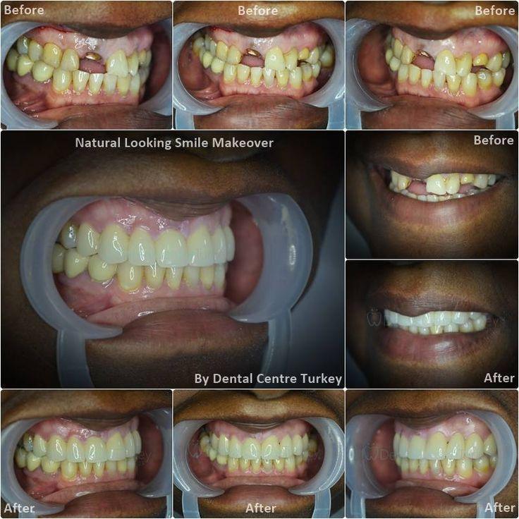 Natural smile makeover including a dental bridge to close