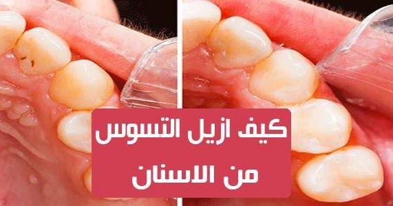 كيف ازيل التسوس من الاسنان العديد من الناس تشتكي من تسوس الاسنان وتريد علاج للتخلص من التسوس وهناك العديد من الاسباب التي تؤدي Gummy Candy Peach Rings Gummies
