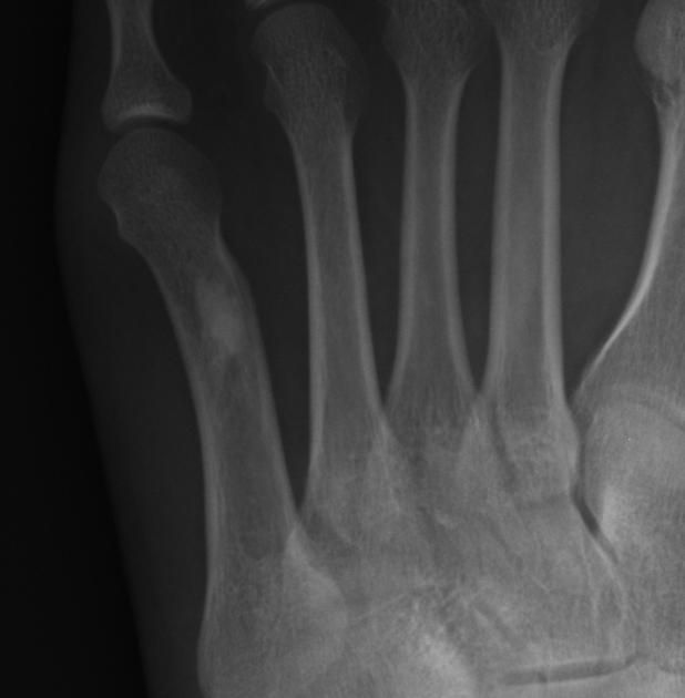 Bone island (enostosis)   Radiology Case   Radiopaedia.org ... Xray Femur Bone Island Concerning
