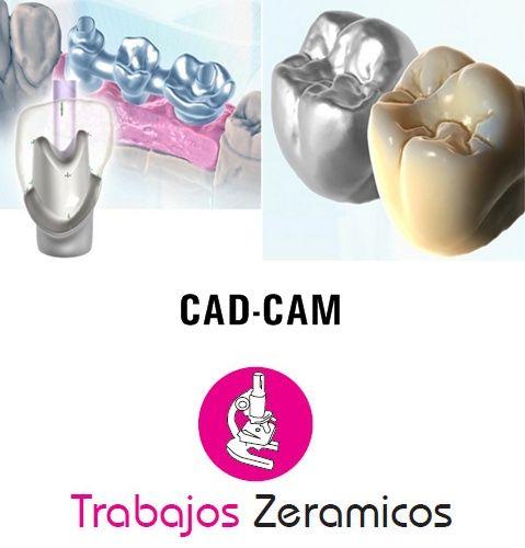 Aplicaciones del sistema CAD-CAM de diseño 3D asistido por ordenador a las técnicas de prótesis dental