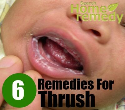 Search Home Remedy - http://www.searchhomeremedy.com/home-remedy-for-thrush/