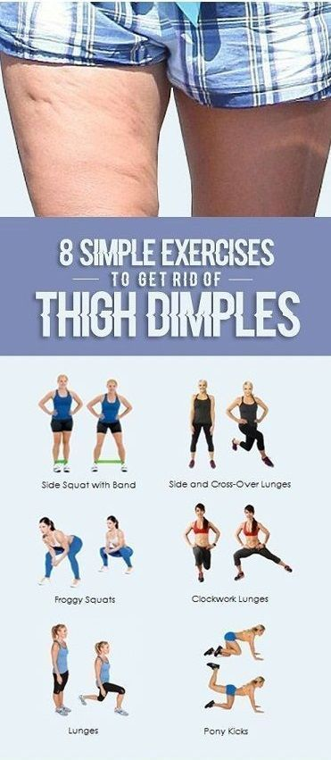 8 Simple Exercises to get rid of Thigh Dimples #healthandfitnesstips