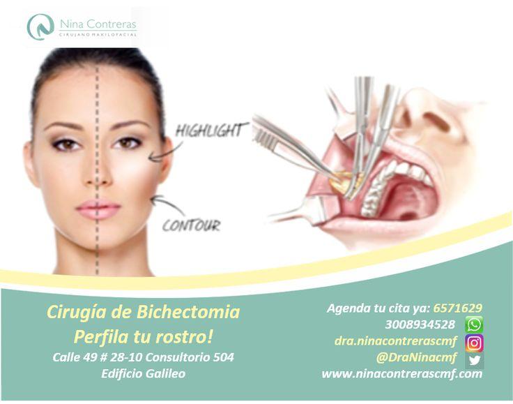 """Cirugía de mejillas """"Bichectomia"""" Perfila tu rostro. Agenda tu cita ya, excelentes precios: 6571629 – WhatsApp: 3008934528. http://ninacontrerascmf.com/2016/08/cirugia-de-mejillas-bichectomia/"""