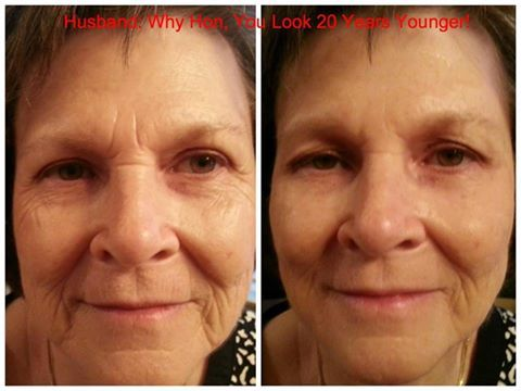 More AMAZING results with our 2 Minute Miracle. http://2minuteskinmiracle.com/CP1/?u=871