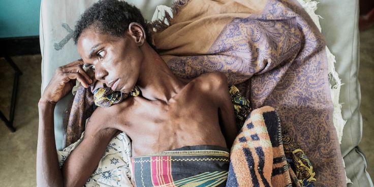 VIH: todavía hay demasiadas muertes por sida en África subsahariana | Un cifra inaceptable de personas sigue desarrollando y muriendo de enfermedades relacionadas con el SIDA en África subsahariana.  Las principales causas de enfermedad y muerte en estos pacientes son el fracaso o suspensión del tratamiento y el diagnóstico tardío para el VIH.