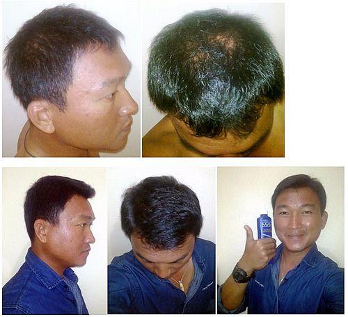 shampoo nisim 1