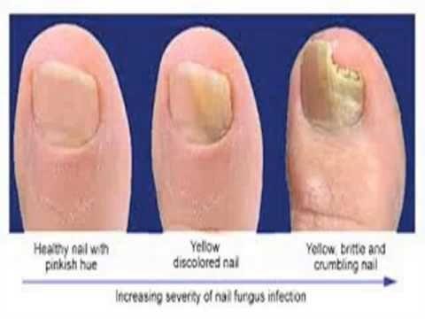 Tratamientos para los hongos en las uñas sin medicinas