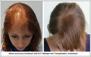 Female Hair Restoration Hattingen Hair Transplantation, Switzerland
