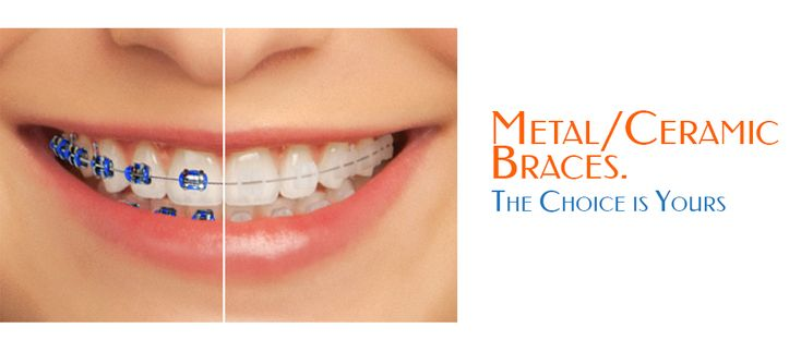 aesthetic and conventionally pleasing braces in angleton tx