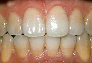 Semi teeth stanes needs to brush more