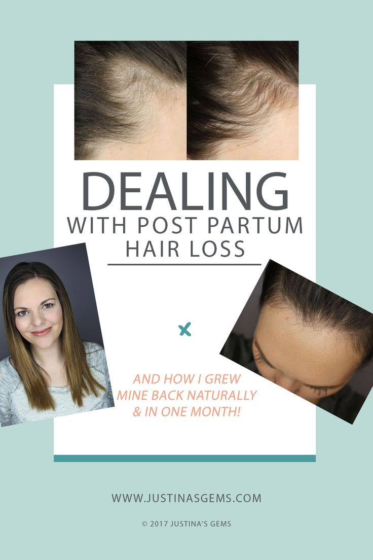 Dealing with Post Partum Hair Loss & How I Grew Mine Back Naturally in One Month | Natural Remedies for Post Partum Hair Growth | Hair Loss After Pregnancy