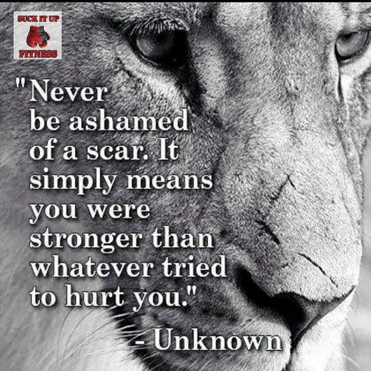 Never be ashamed of a scar. Never let someone make you ashamed of your scars. Those are your battle wounds wear them proudly. Scars just mean you were stronger than whatever tried to stop you.  #suckitupfitness #scars #quote