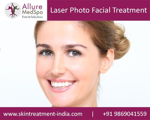 Facial laser treatments yakima