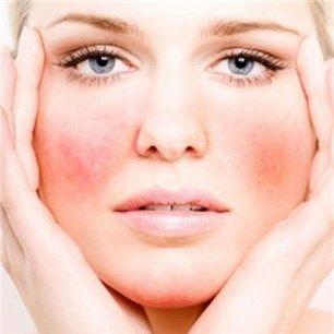 Cómo tratar las pieles sensibles