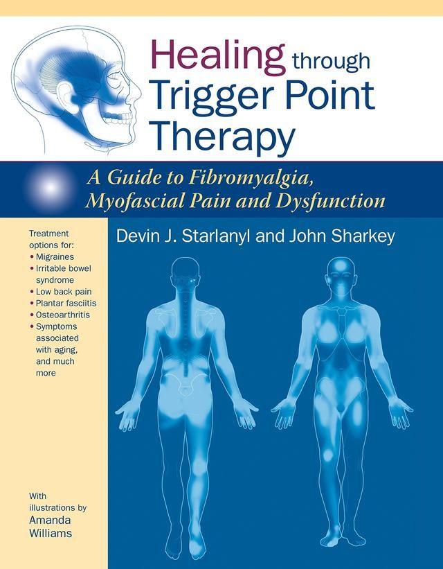 30 New Fibromyalgia Tender Points Chart Pdf
