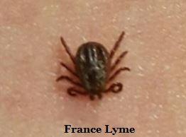 Piqûre tique France Lyme