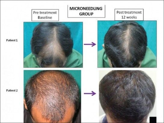 derma roller for hair loss clinical research results