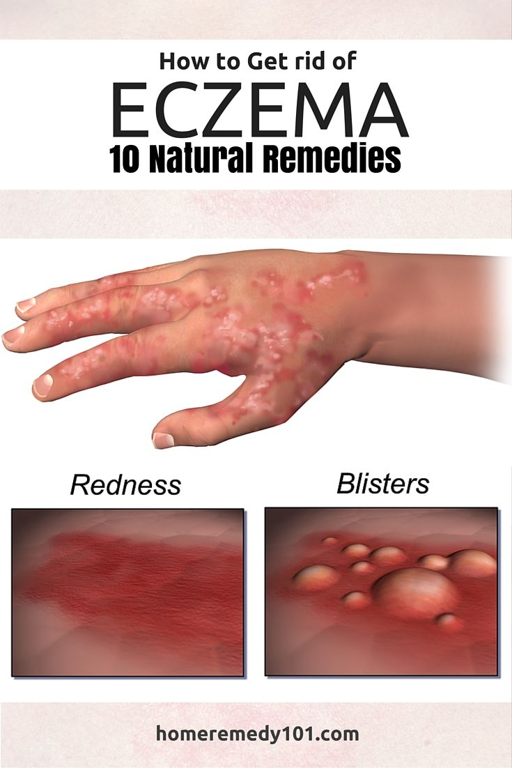 How to Get Rid of Eczema: 5 Natural Home Remedies
