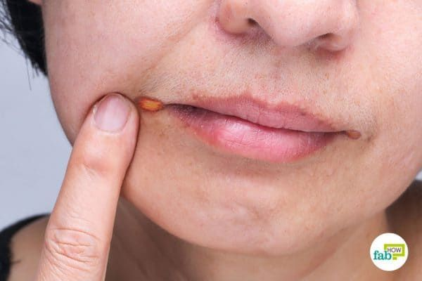 How To Get Rid Of Angular Cheilitis Fab How Sore Lips Lip