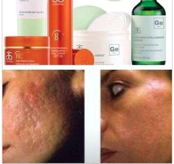 Amazing duo - Arbonne RE9 and Arbonne Intelligence Genius #arbonnebeforeafter go to www.conniebrum.arbonne.com
