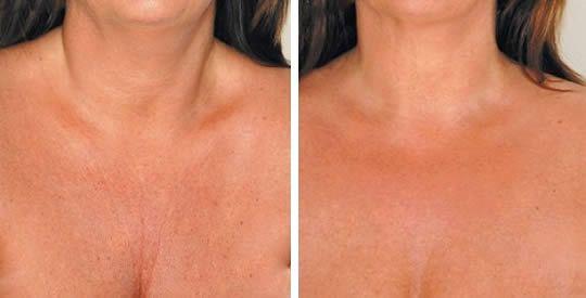 5 rimedi contro le rughe sul petto | Rimedio Naturale