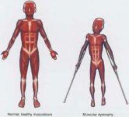Muscular Dystrophy Symptoms and Treatments – Duchenne, Limb Girdle, Fascioscapulo Humeral